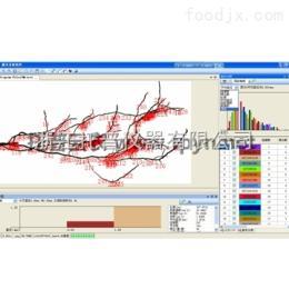 利用GXY-A根系图像分析仪研究?#21442;?#26681;系状况